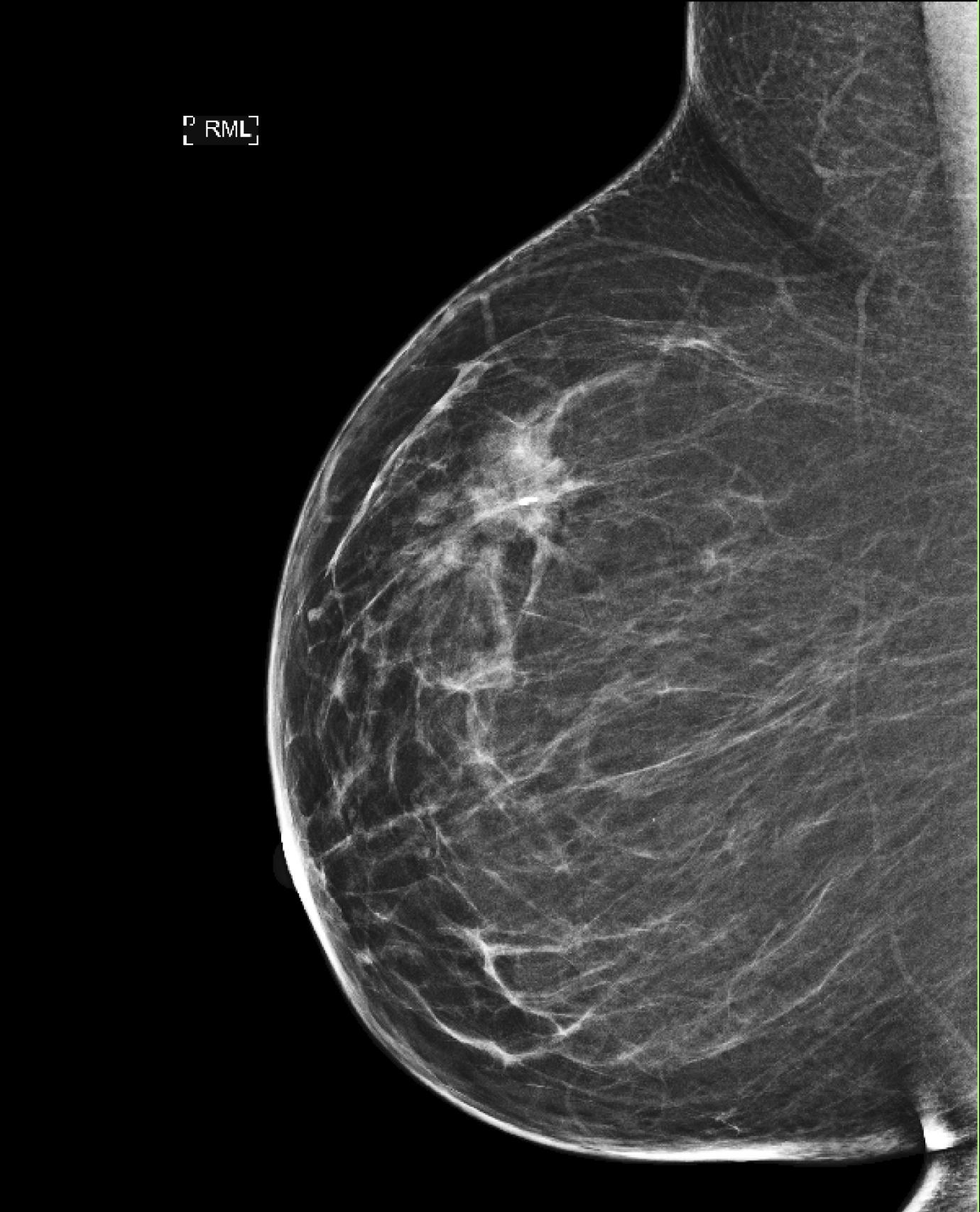 brustkrebs mit 20